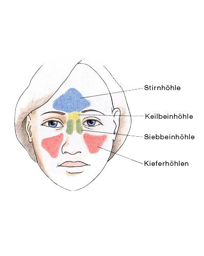 Nasennebenhöhlen Symptome Entzündung