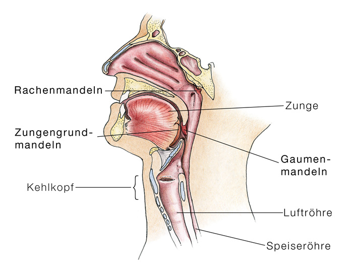 Peritonsillarabszess, Mandelabszess - eesom Gesundheitsportal