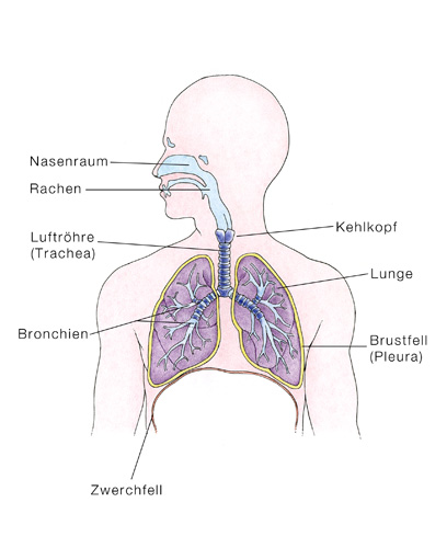 Bronchiektasen, Bronchuserweiterungen - eesom Gesundheitsportal