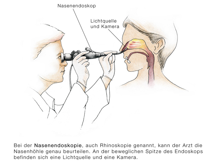 Nasenbluten - Nasenbluten & Bored Housewives