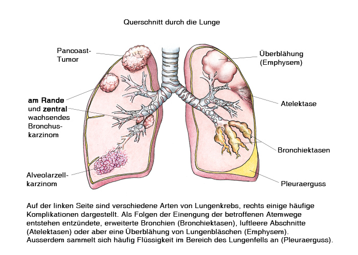 Lungenkrebs, Lungekarzinom, Bronchus-Karzinom, Bronchial-Karzinom ...