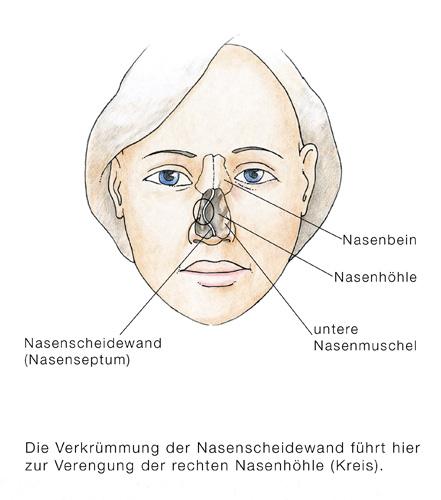 Nasenseptumdeviation, Verkrümmung der Nasenscheidewand