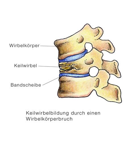 Osteomalazie, Osteomalacie, Knochenschwund - eesom Gesundheitsportal
