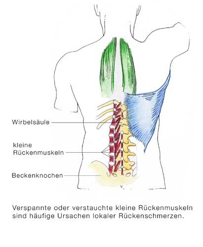 Chronische Rückenschmerzen, Rückenverspannungen - eesom ...