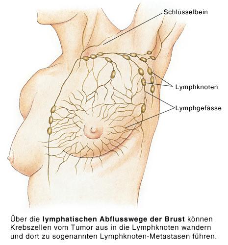 Krebsmetastasen in der Brust