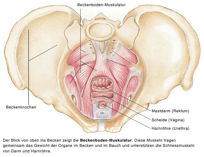 Descensus Uteri, Gebärmuttervorfall, Absenkung der Gebärmutter ...