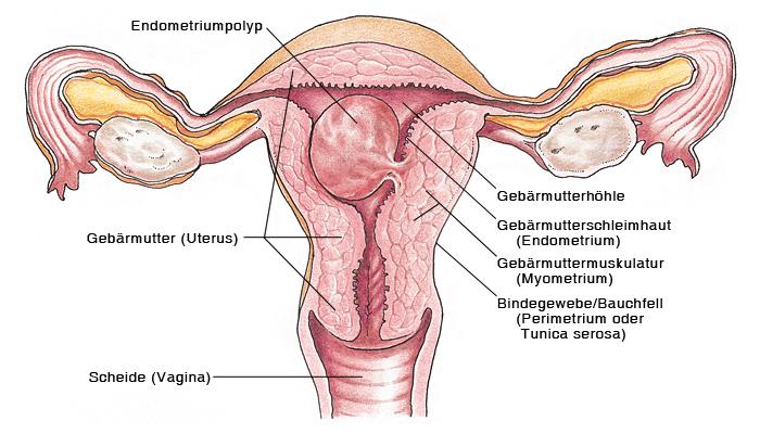 Endometriumpolypen, Gebärmutterpolypen - eesom Gesundheitsportal