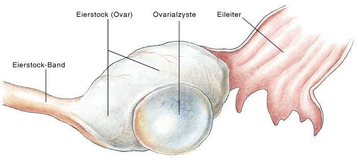 Ovarialzysten Eierstockzysten Eierstock Zysten Eesom