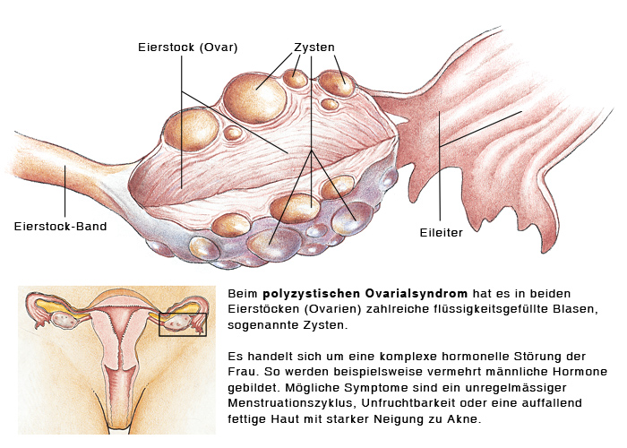 Polyzystisches Ovarialsyndrom, Polyzystisches Ovar - eesom ...