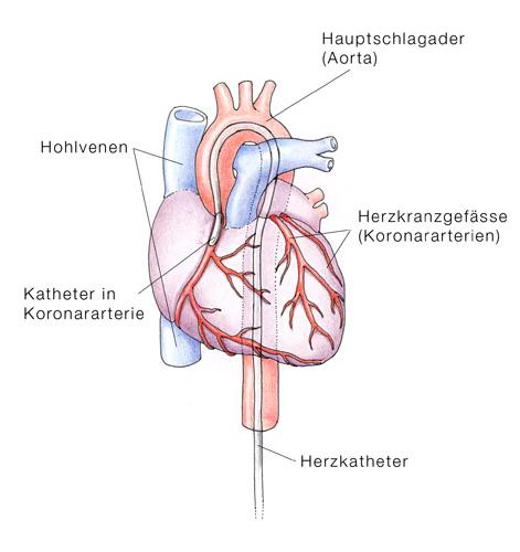 Herzinfarkt, Myokardinfarkt, Verengung der Herzkranzgefässe - eesom ...