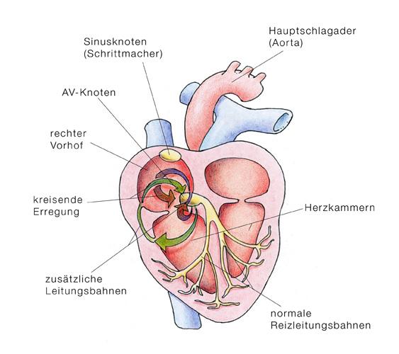 Herzrasen (Reentry-Tachykardie) - eesom Gesundheitsportal