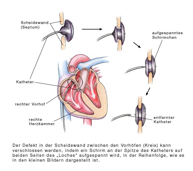 Vorhofseptumdefekt (ASD) - eesom Gesundheitsportal