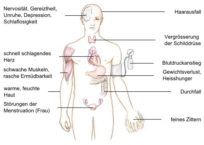 Tetanus Krankheit bei Erwachsenen - impfen-infode
