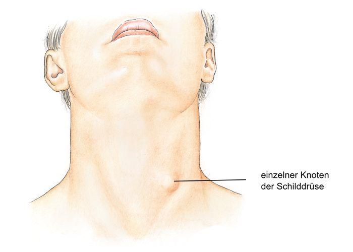 Knoten in der Brust Apotheken Umschau