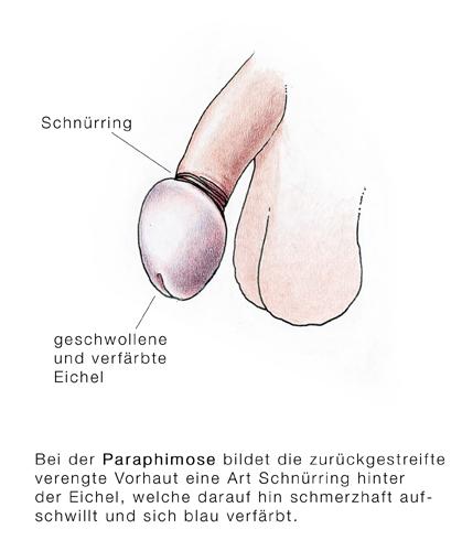 Schmerzen penis riss