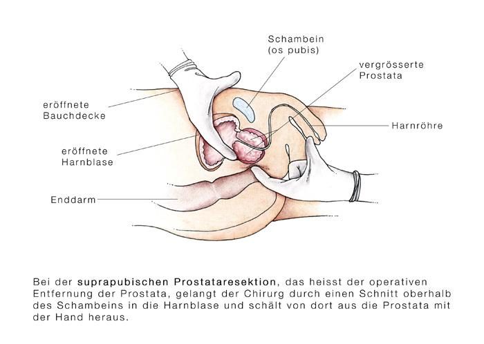 Prostata Fingern
