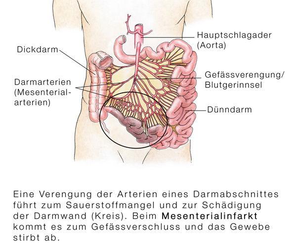 Darm-Durchblutungsstörungen (Angina Abdominalis) - eesom ...