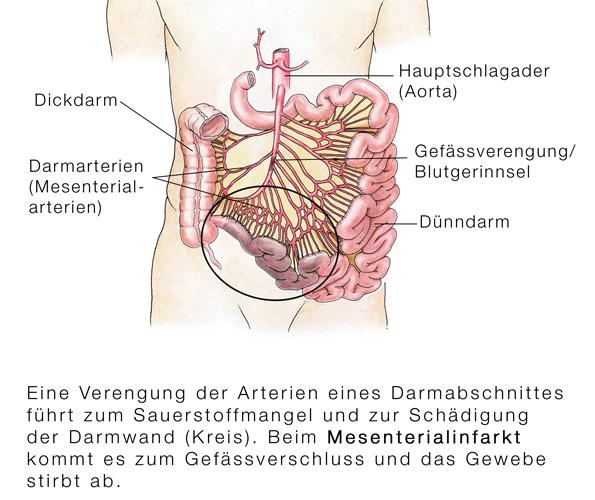 darmentzündung enddarm