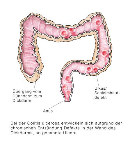 entzündung darmwand