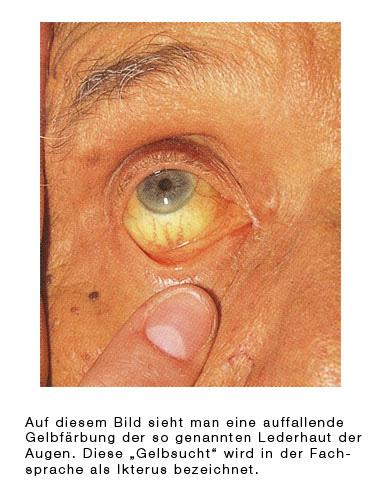 Gallenblasenkrebs Gallengangskrebs Eesom Gesundheitsportal