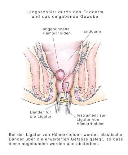 Best das Mittel gegen die gestartete Hämorrhoide