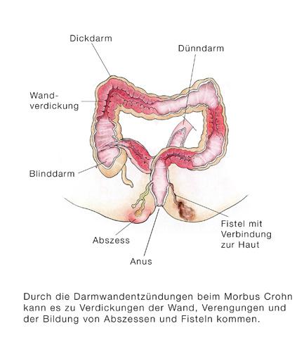 morbus chron symtom