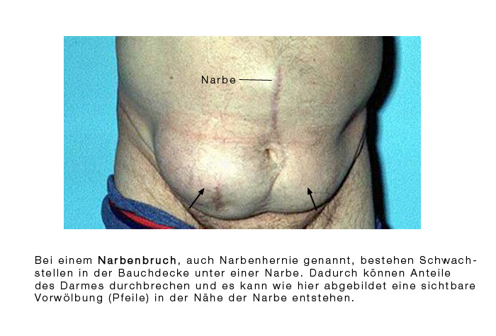 darmoperation bei divertikulitis