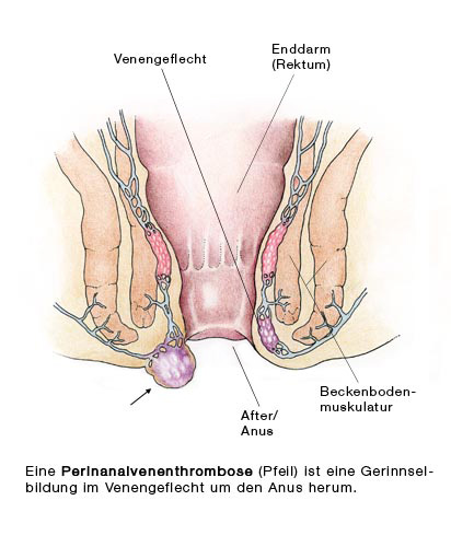 Anal thrombose Thrombosed Hemorrhoid: